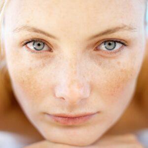 Melasma-natural-treatment-2