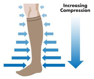 4-compression_sock_illustration